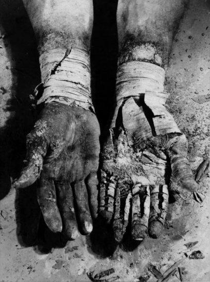 Dieter Appelt, Liberation of the Fingers