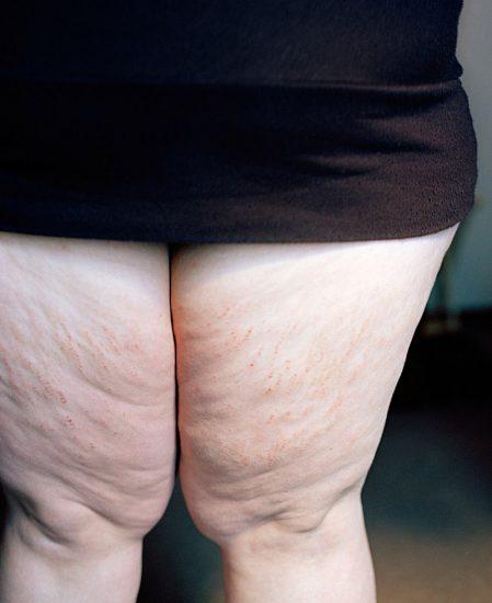 Jen Davis, Chapped Legs