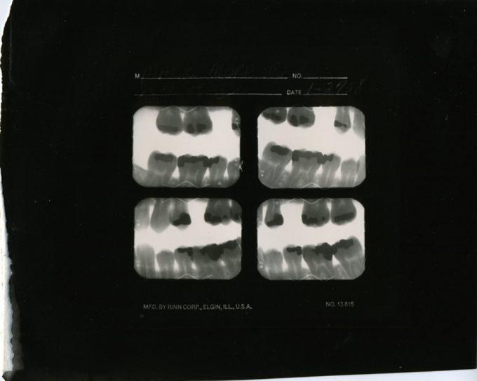 Mark Morrisroe, Untitled (Self Portrait / Teeth X-Ray)